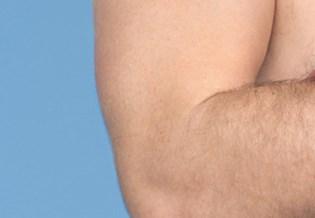 Larocheposay ArticlePage Eczema Psoriasisjpeg